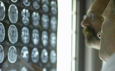Bijdrage Kunstmatige intelligentie aan kosten gezondheidszorg