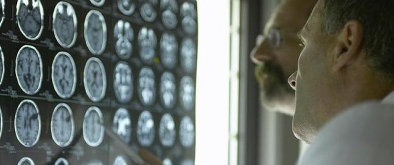 Bijdrage kunstmatige intelligentie aan kosten gezondheidzorg