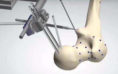 Robotsysteem voor orthopedische chirurgie