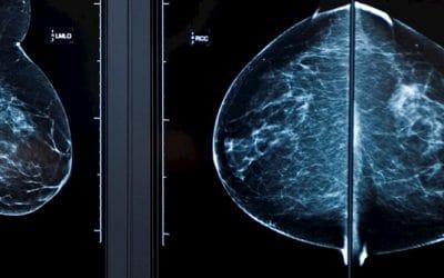 AI toont belofte voor borstkankerscreening